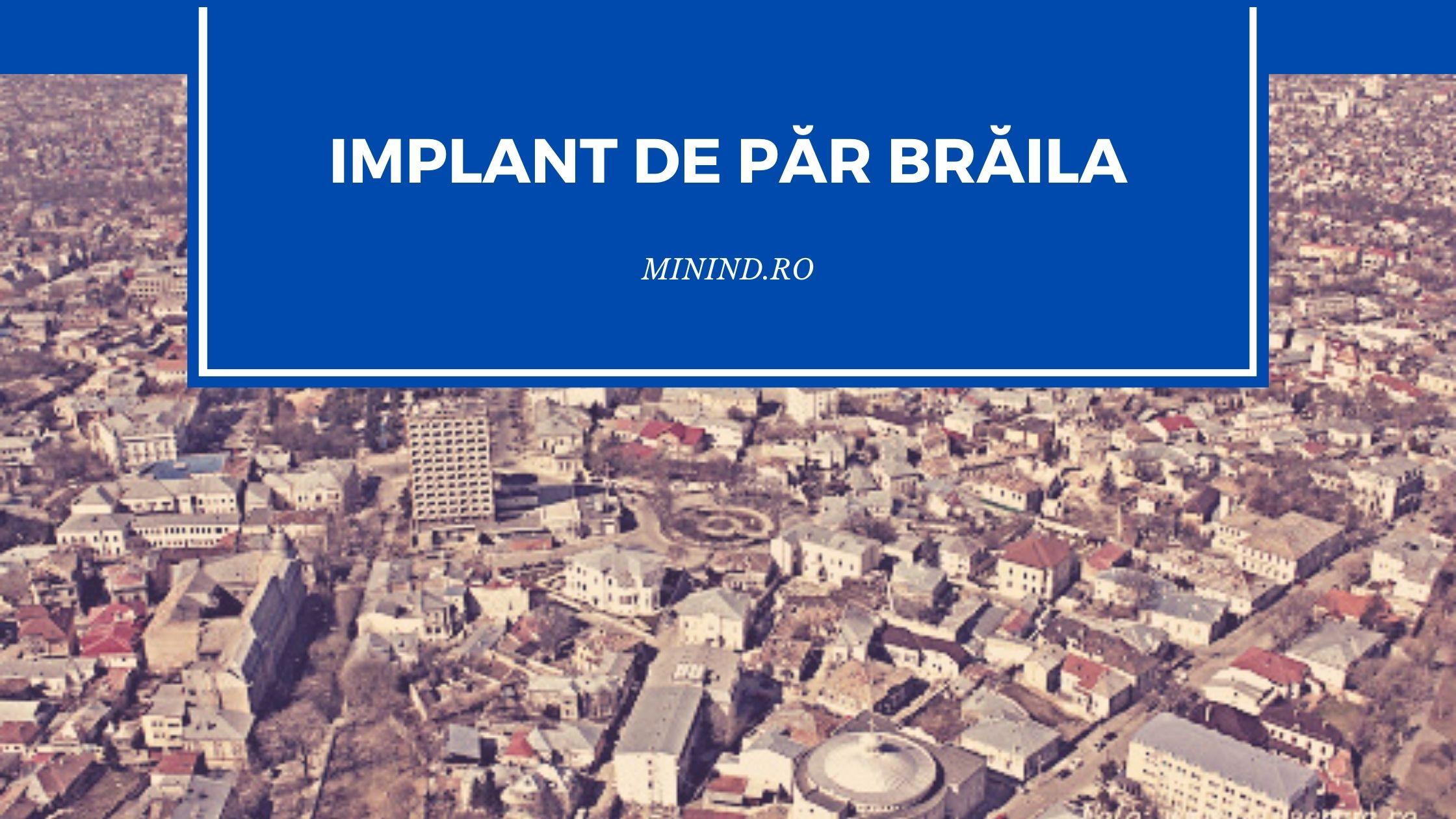 implant de par braila