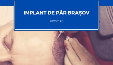 Implant de par Brasov