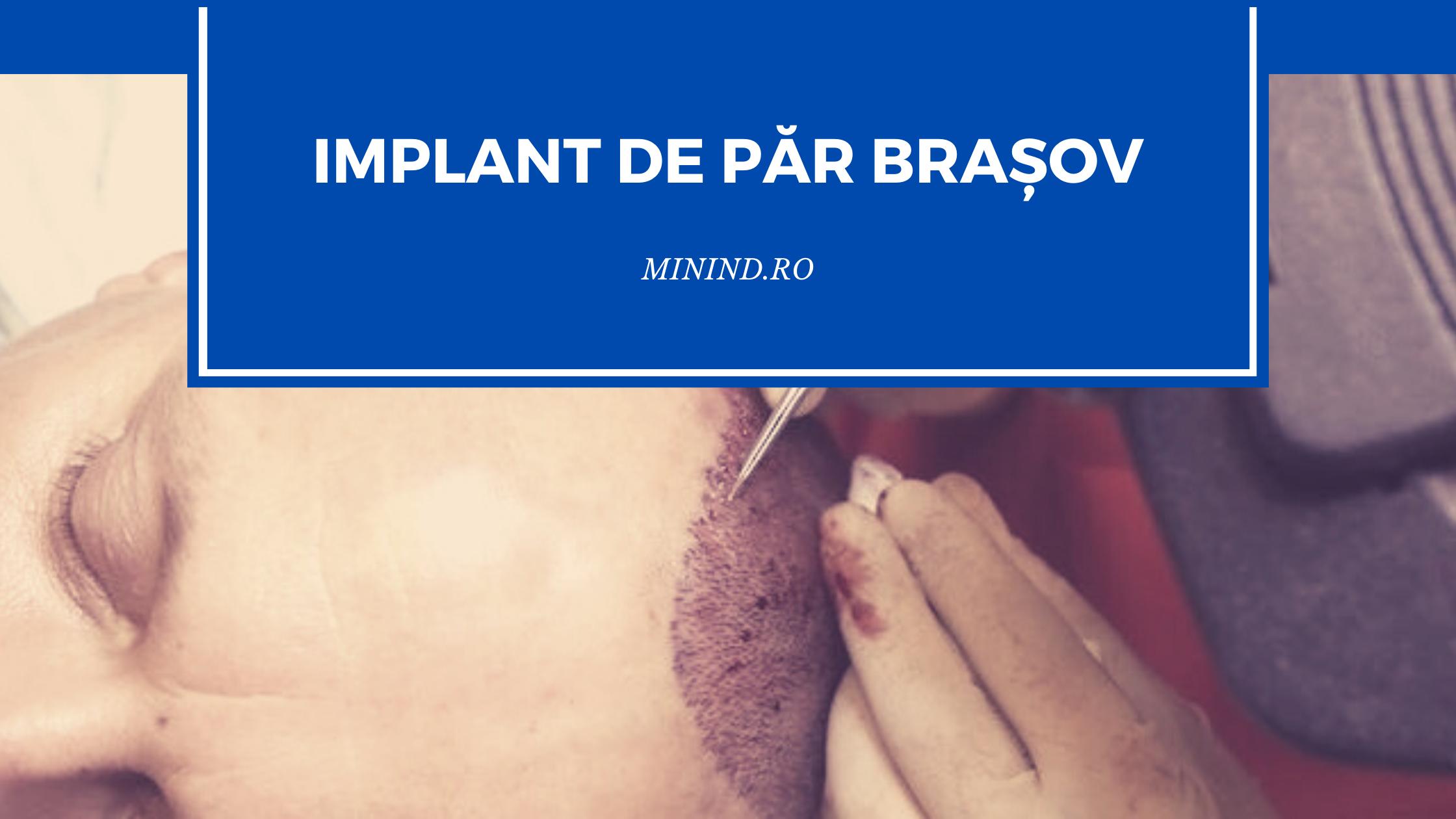 implant de par brașov
