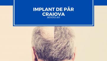 Implant de par Craiova