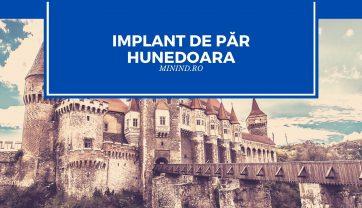 Implant de par Hunedoara