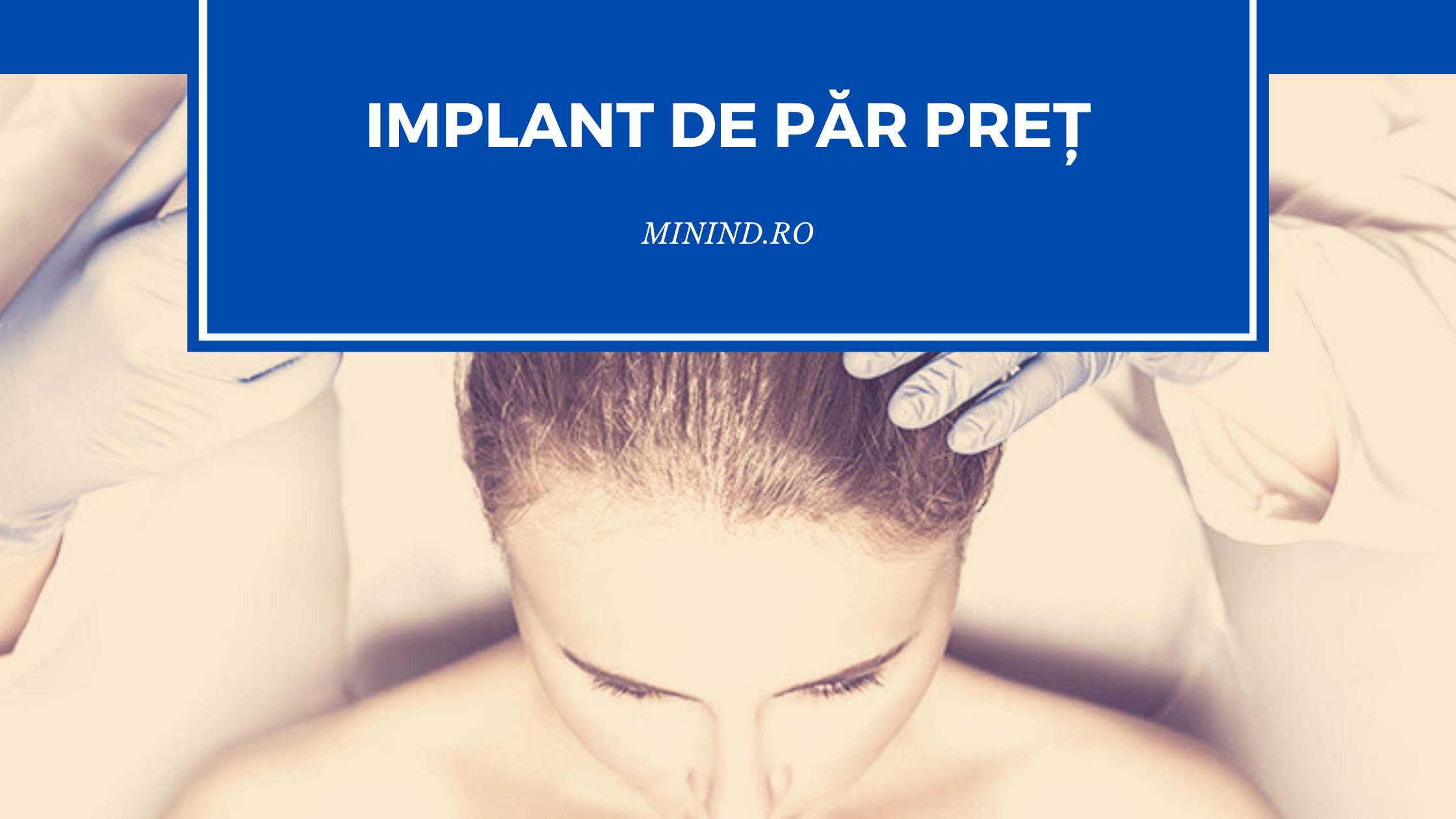 implant de par pret