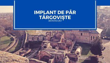 Implant de par Targoviste
