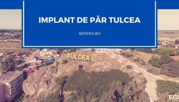 Implant de par Tulcea